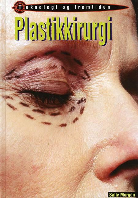 Plastikkirurgi af Sally Morgan