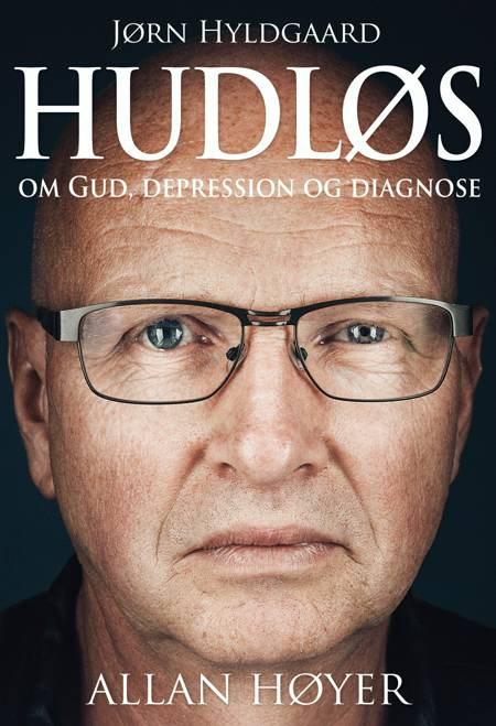 Hudløs af Allan Høyer
