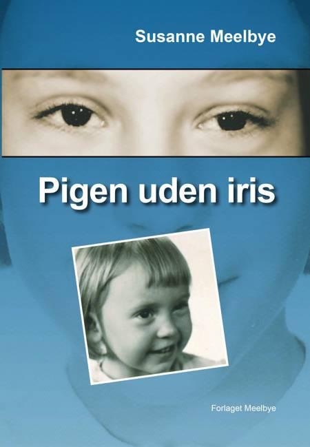 Pigen uden iris af Susanne Meelbye