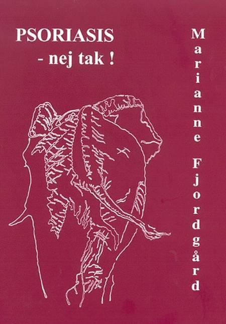 Psoriasis - nej tak! af Marianne Fjordgård