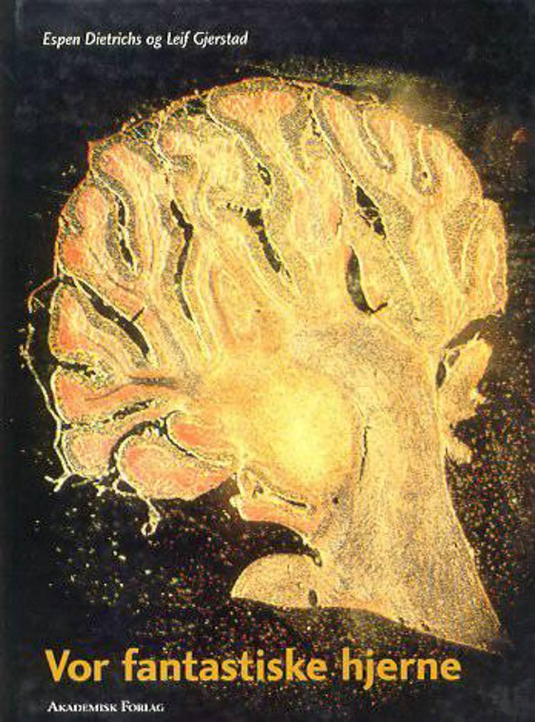 Vor fantastiske hjerne af Espen Dietrichs