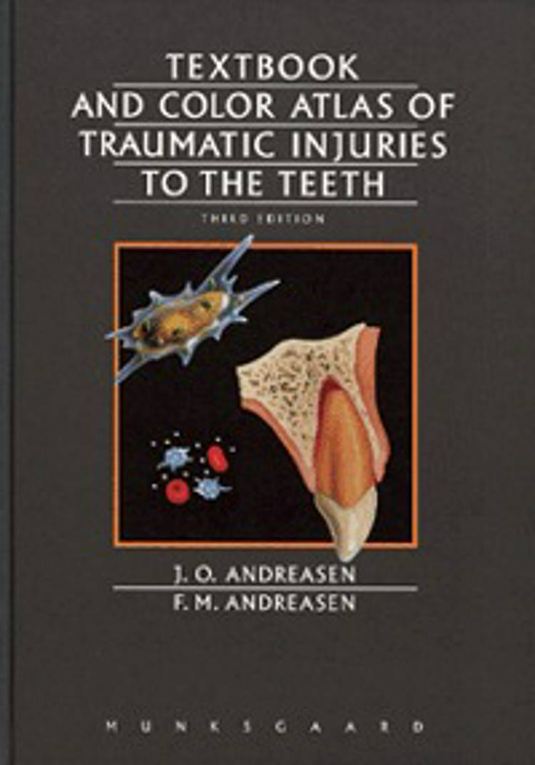 Textbook and color atlas of traumatic injuries to the teeth af J. O. Andreasen