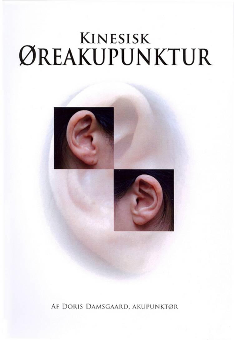 Kinesisk øreakupunktur af Doris Damsgaard